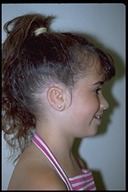 Microtia-After2