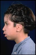 Microtia-After4