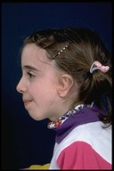 Microtia-After5