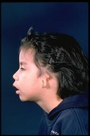 Microtia-Before4