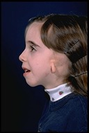 Microtia-Before5