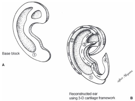 Fabrication of ear framework from rib cartilage