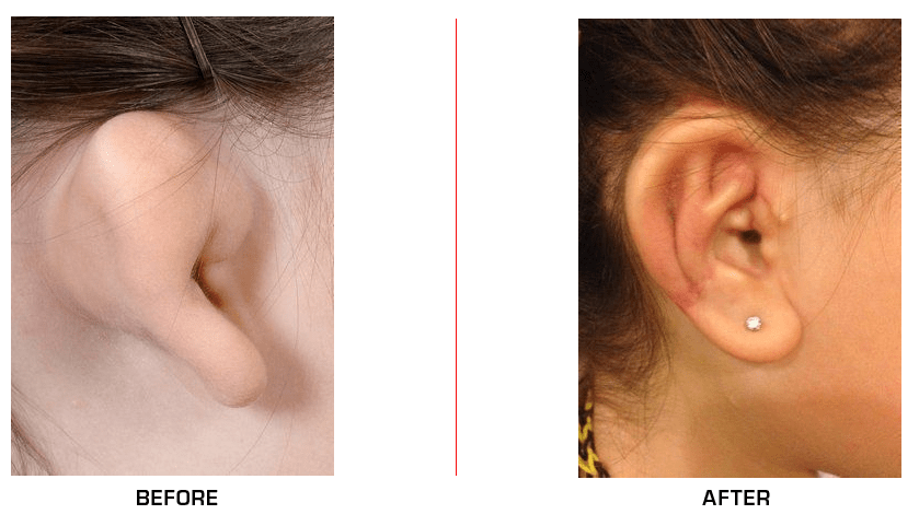Ear Reconstruction before after case1