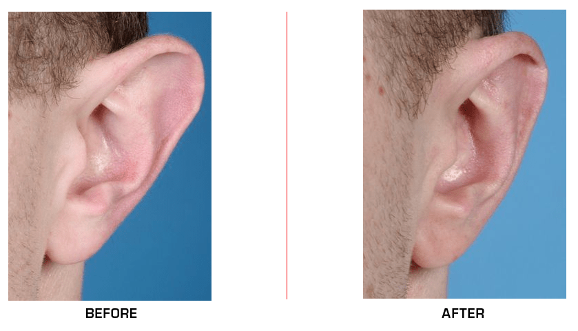 ear reduction case3