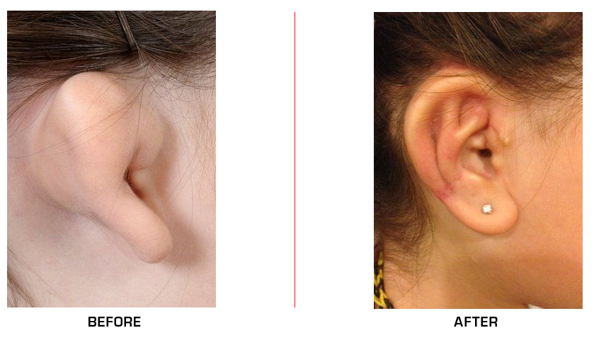 Microtia before after case1