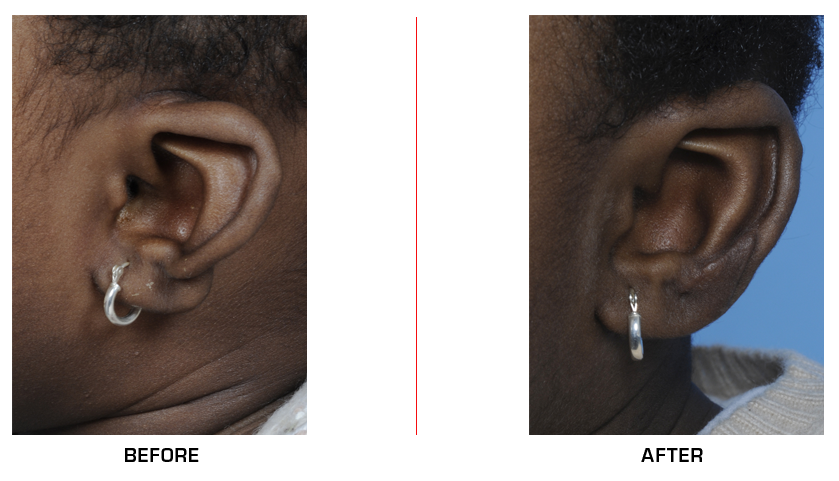 Microtia Ear Reconstruction before after case12