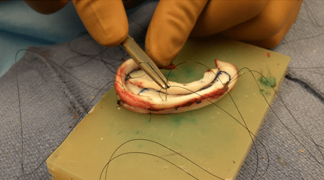 cartilage are sutured together