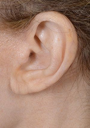 earlobe shortening after
