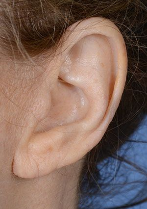 earlobe shortening before